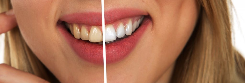 Pourquoi se blanchir les dents
